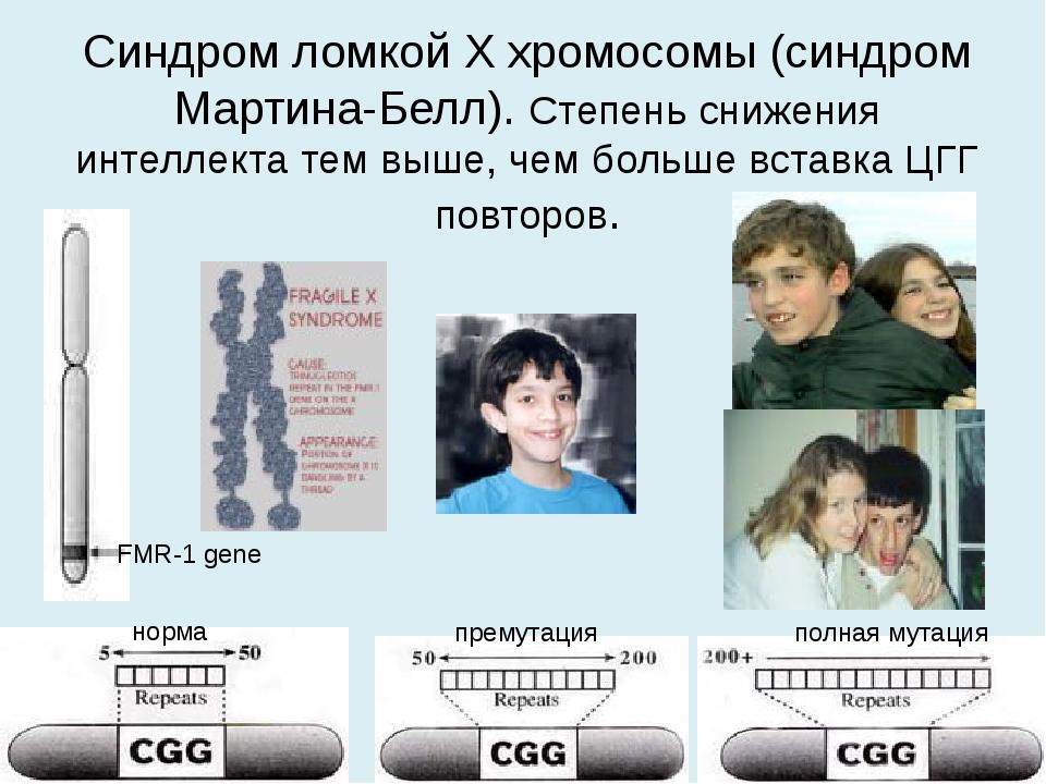 Синдром ломкой Х хромосомы (синдром Мартина-Белл). Степень снижения интеллект...