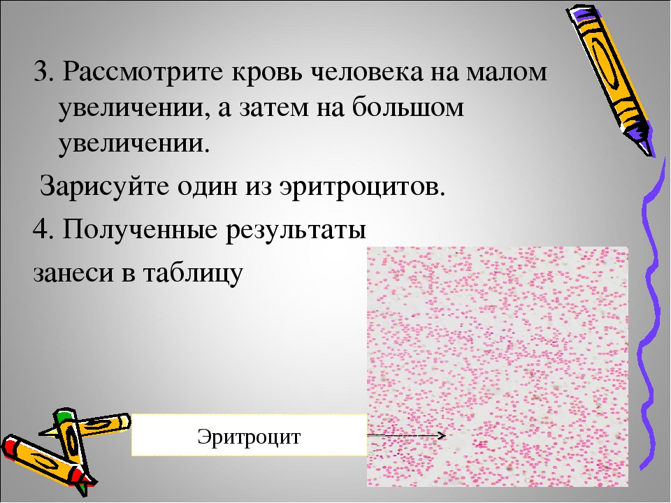 3. Рассмотрите кровь человека на малом увеличении, а затем на большом увеличе...