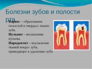 Болезни зубов и полости рта Кариес – образование полостей в твердых тканях зу