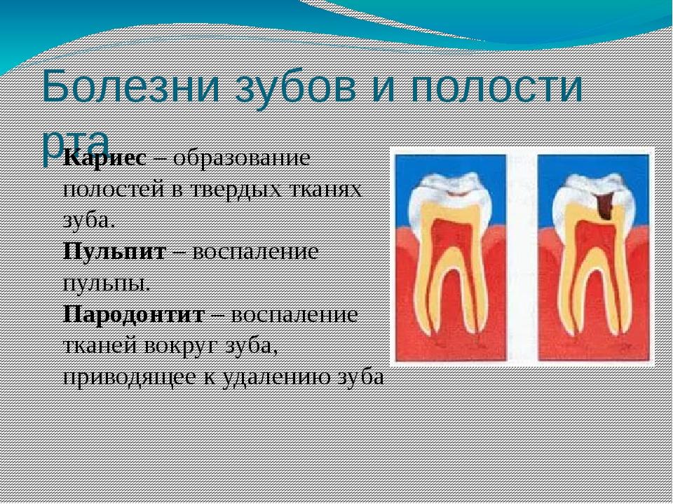 Болезни зубов и полости рта Кариес – образование полостей в твердых тканях зу...