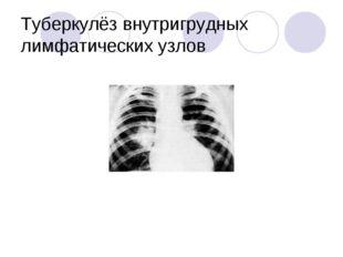 Туберкулёз внутригрудных лимфатических узлов