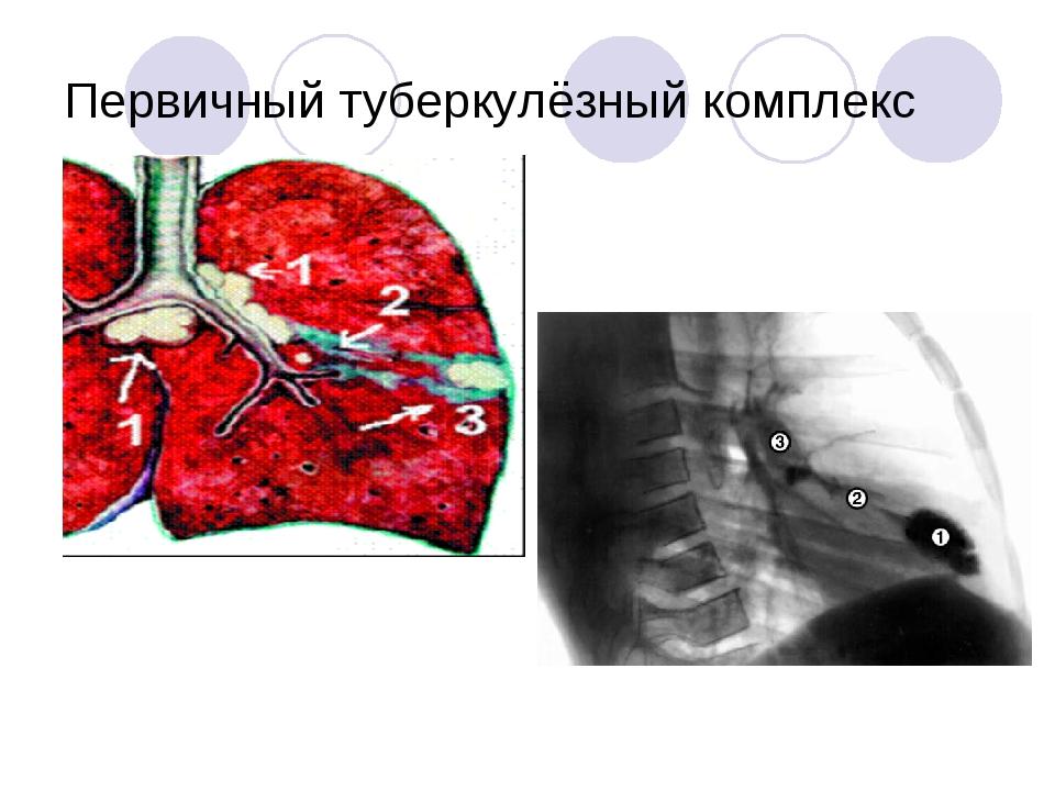 Первичный туберкулёзный комплекс