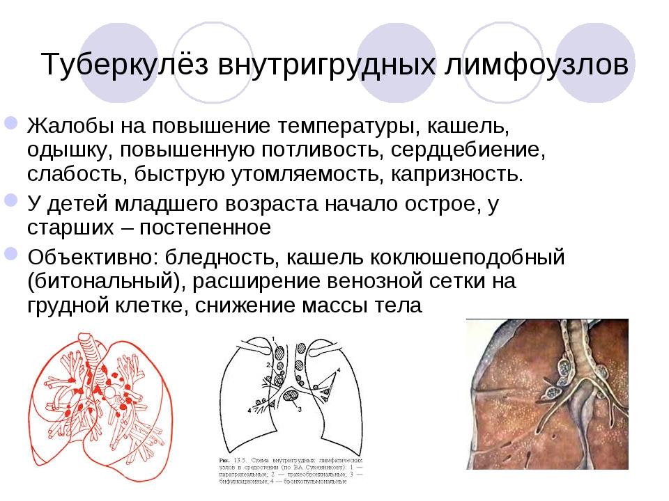 Туберкулёз внутригрудных лимфоузлов Жалобы на повышение температуры, кашель,...