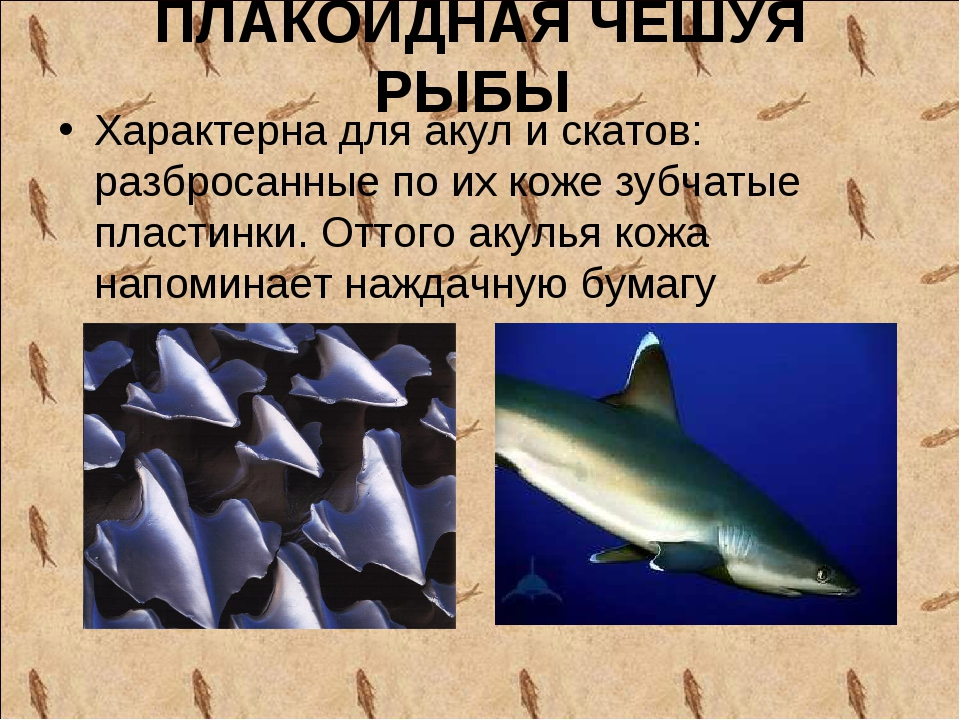 ПЛАКОИДНАЯ ЧЕШУЯ РЫБЫ Характерна для акул и скатов: разбросанные по их коже з...