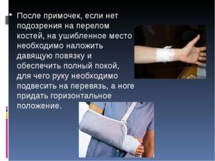 После примочек, если нет подозрения на перелом костей, на ушибленное место не