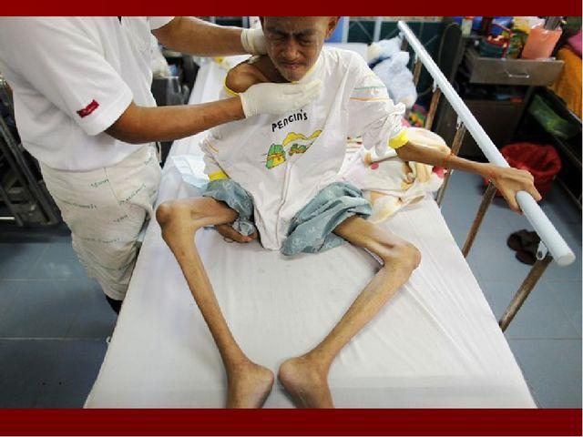 Стадии болезни СПИДа Заражение инфекцией ВИЧ: недельная лихорадка, увеличение...