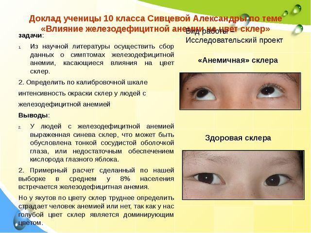 Доклад ученицы 10 класса Сивцевой Александры по теме «Влияние железодефицитно...