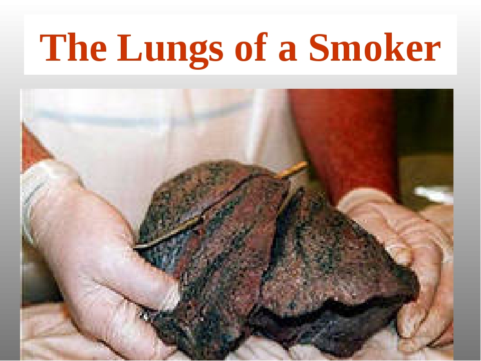 The Lungs of a Smoker