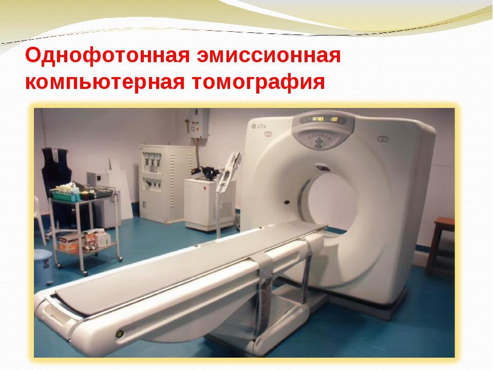 Однофотонная эмиссионная компьютерная томография