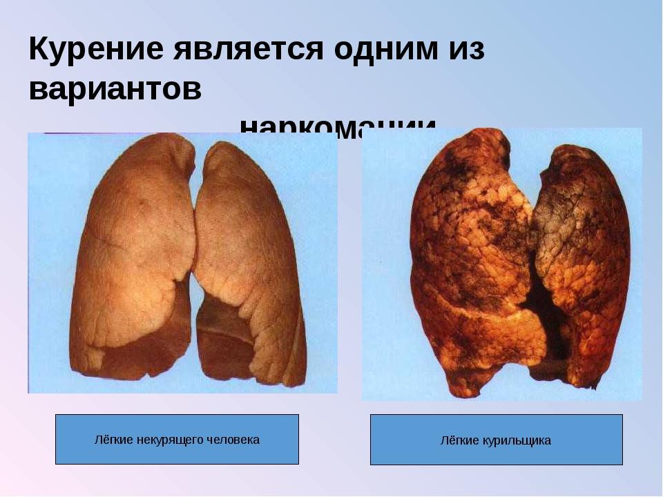 Курение является одним из вариантов наркомании Лёгкие некурящего человека Лёг...