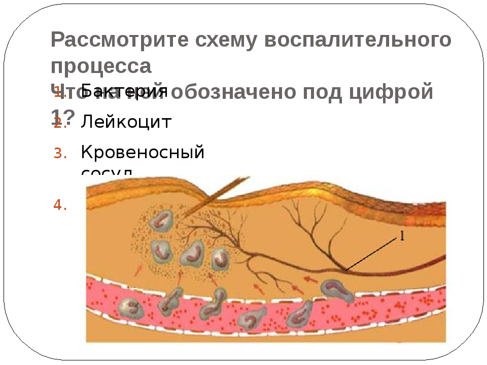 Рассмотрите схему воспалительного процесса Что на ней обозначено под цифрой 1...