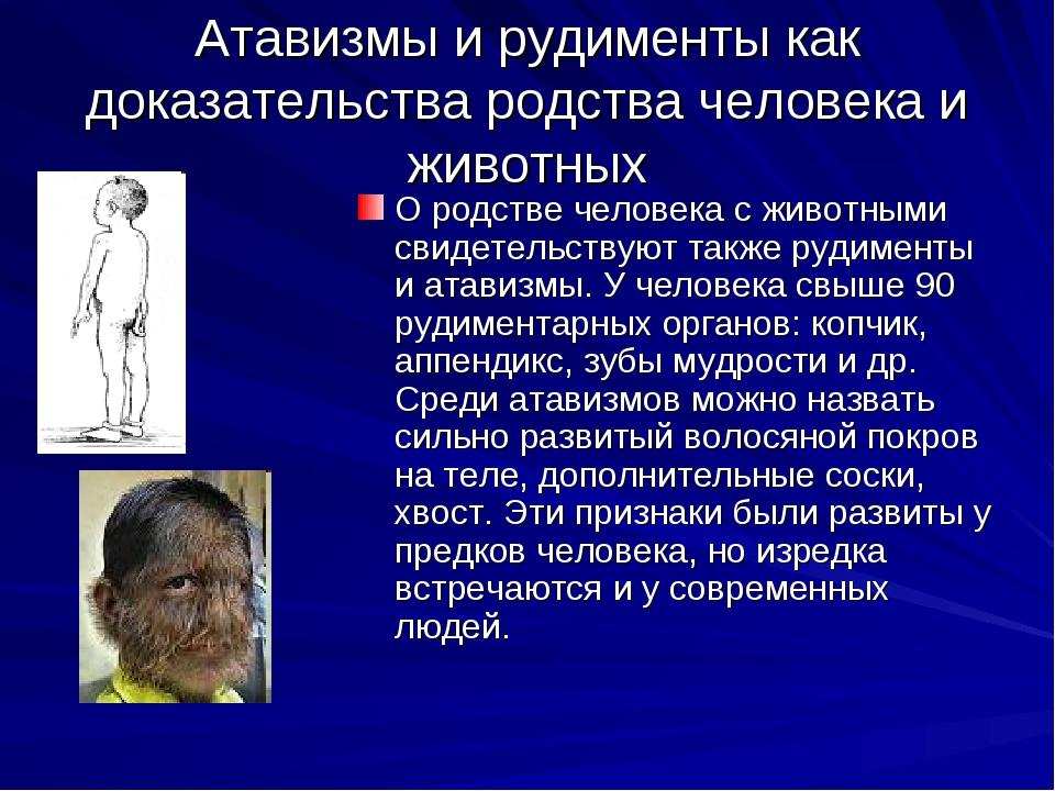 Атавизмы и рудименты как доказательства родства человека и животных О родстве...