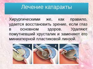 Лечение катаракты Хирургическими же, как правило, удается восстановить зрение