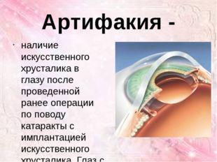 Артифакия - наличие искусственного хрусталика в глазу после проведенной ранее