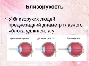 Близорукость У близоруких людей преднезадний диаметр глазного яблока удлинен