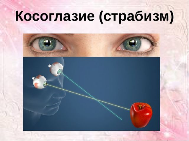 Косоглазие (страбизм)