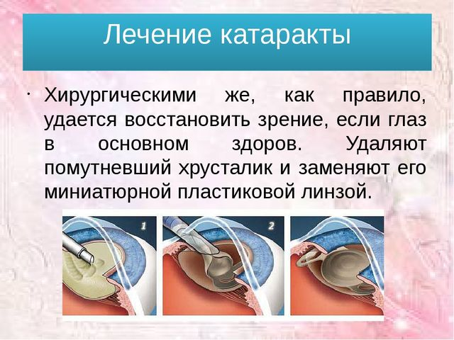 Лечение катаракты Хирургическими же, как правило, удается восстановить зрение...