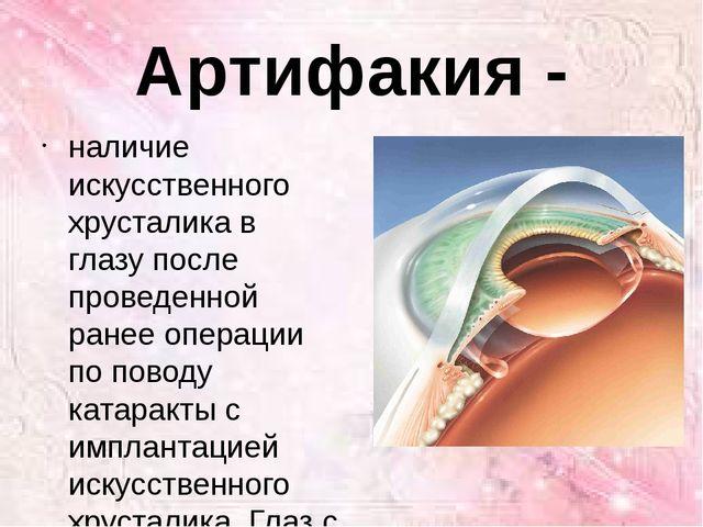 Артифакия - наличие искусственного хрусталика в глазу после проведенной ранее...