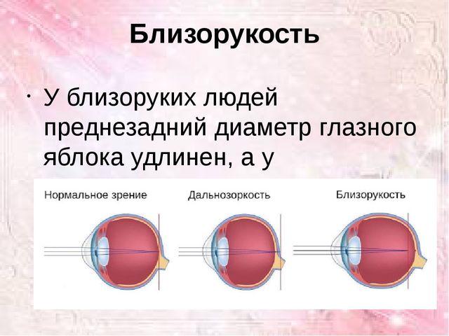 Близорукость У близоруких людей преднезадний диаметр глазного яблока удлинен...
