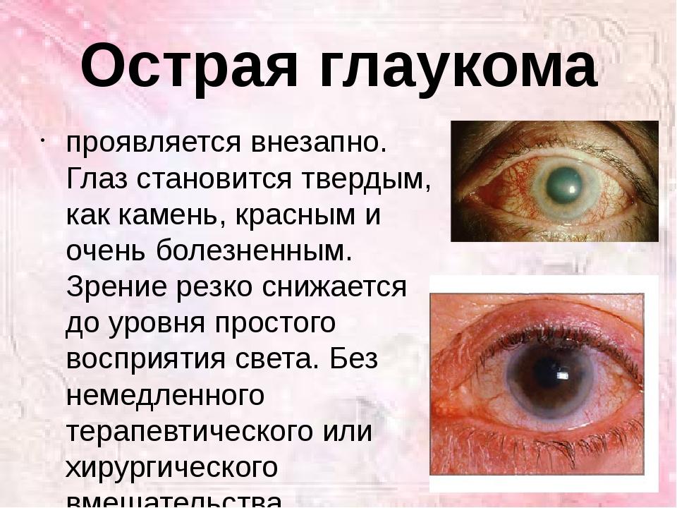 Острая глаукома проявляется внезапно. Глаз становится твердым, как камень, кр...