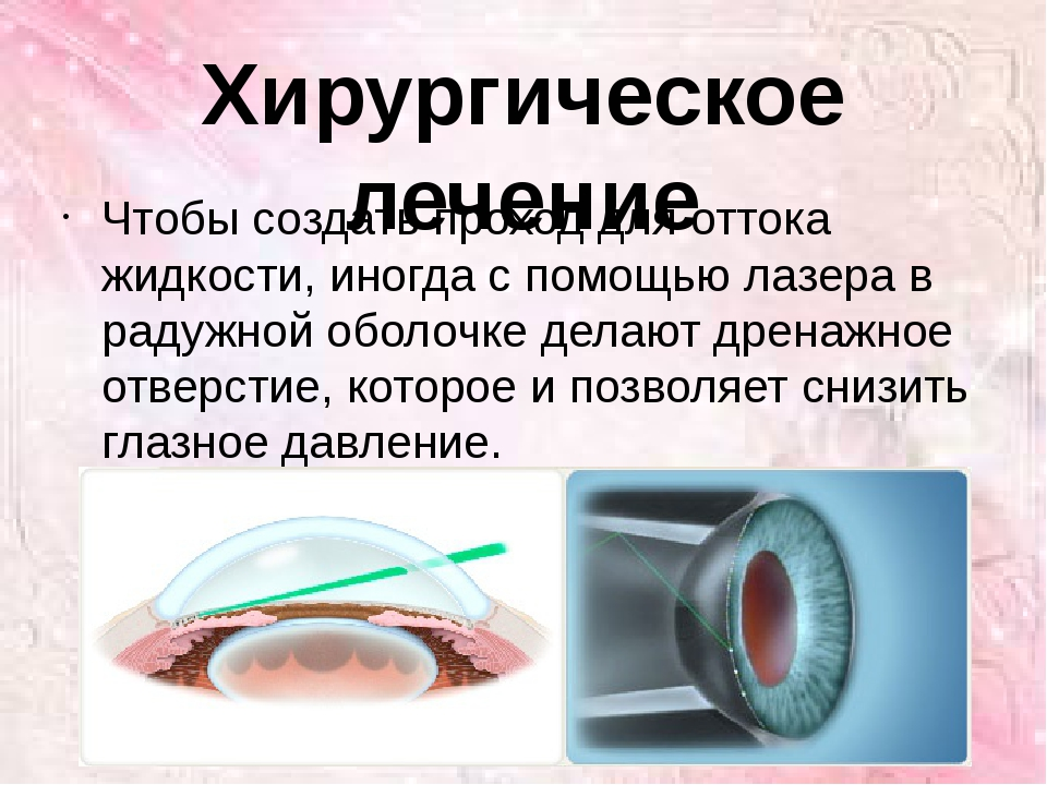 Хирургическое лечение Чтобы создать проход для оттока жидкости, иногда с помо...