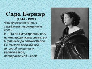 Сара Бернар (1844 - 1923) Французская актриса с серьёзным повреждением колен.