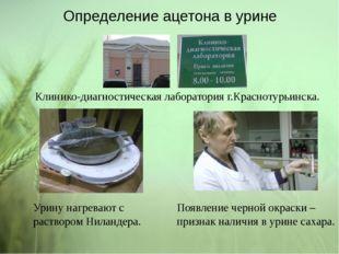 Определение ацетона в урине Клинико-диагностическая лаборатория г.Краснотурьи