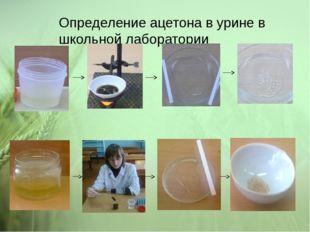 Определение ацетона в урине в школьной лаборатории