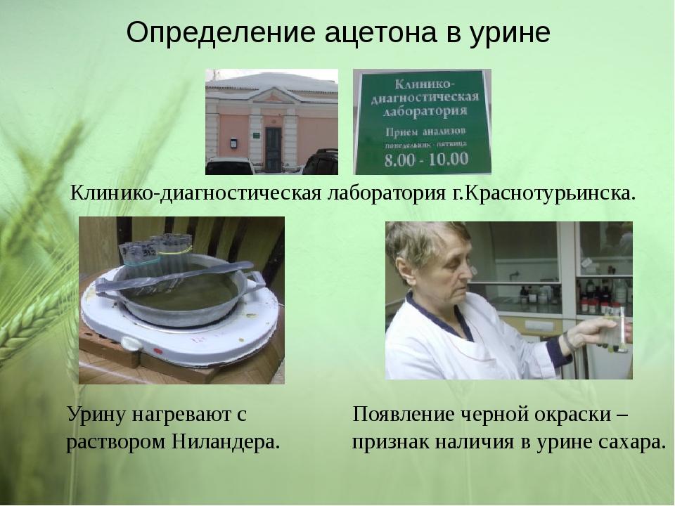 Определение ацетона в урине Клинико-диагностическая лаборатория г.Краснотурьи...