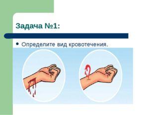 Задача №1: Определите вид кровотечения.