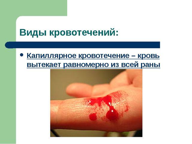 Виды кровотечений: Капиллярное кровотечение – кровь вытекает равномерно из вс...