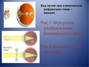 Ход лучей при клинической рефракции глаза – миопия Рис.1 Фокусное изображение