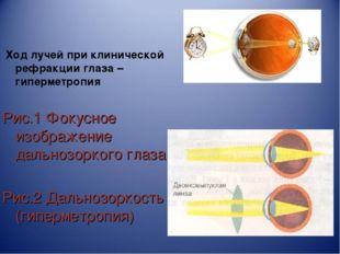 Ход лучей при клинической рефракции глаза – гиперметропия Рис.1 Фокусное изо
