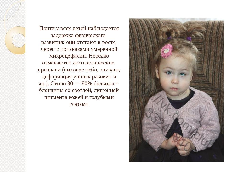 Почти у всех детей наблюдается задержка физического развития: они отстают в...