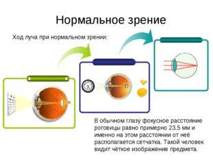 Ход луча при нормальном зрении: Нормальное зрение В обычном глазу фокусное ра