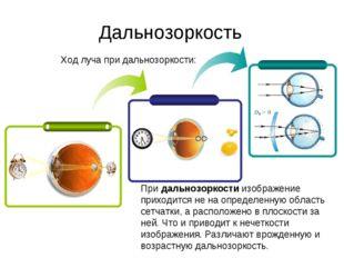 Ход луча при дальнозоркости: Дальнозоркость Придальнозоркостиизображение пр
