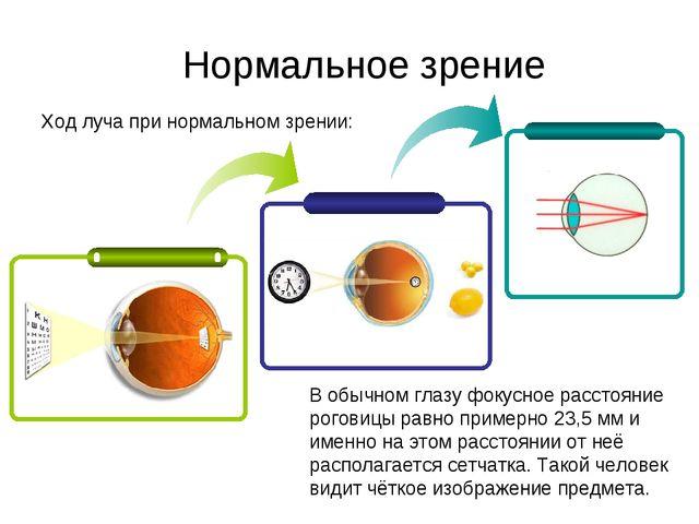 Ход луча при нормальном зрении: Нормальное зрение В обычном глазу фокусное ра...