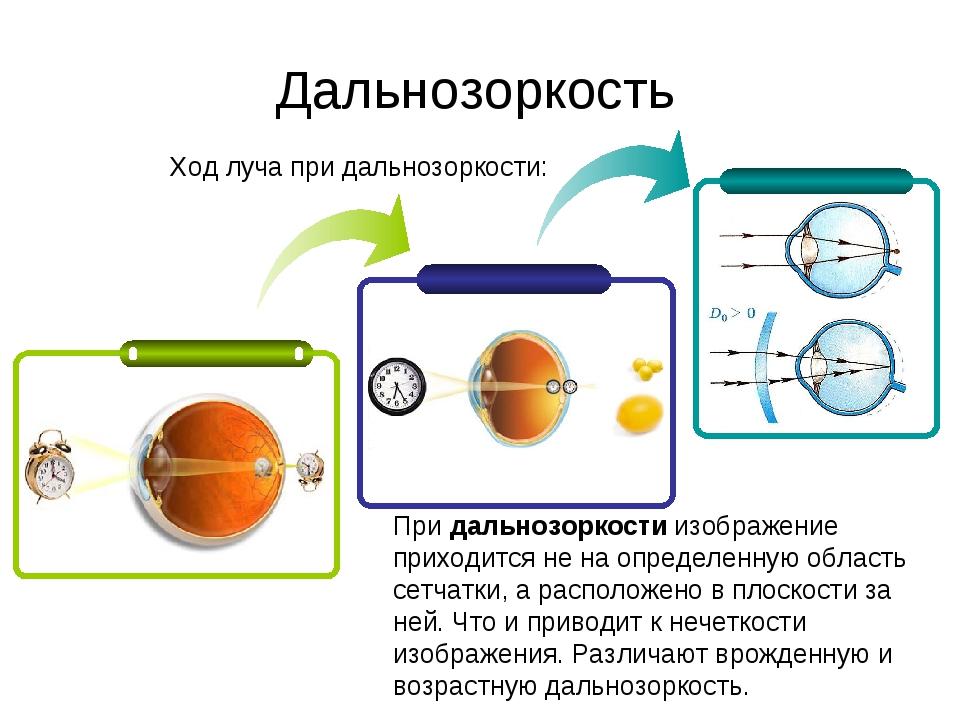 Ход луча при дальнозоркости: Дальнозоркость Придальнозоркостиизображение пр...