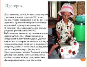 Прогерия Большинство детей, больных прогерией, умирают ввозрасте около 13-ти