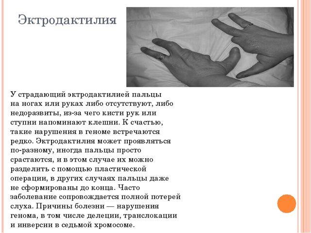 Эктродактилия Устрадающий эктродактилией пальцы наногах или руках либо отсу...