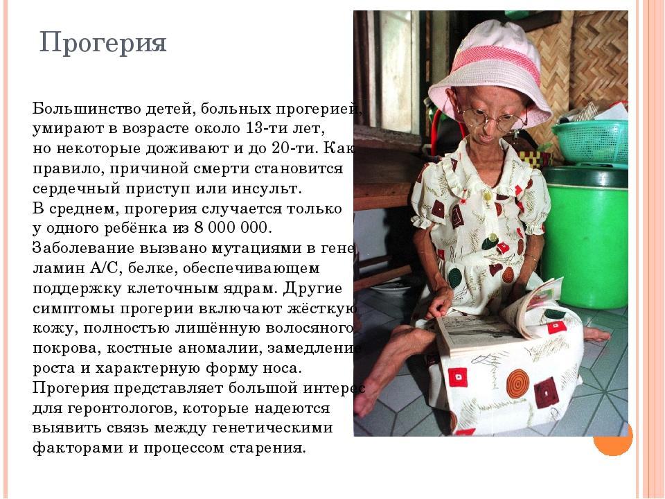 Прогерия Большинство детей, больных прогерией, умирают ввозрасте около 13-ти...