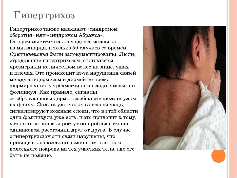 Гипертрихоз Гипертрихоз также называют «синдромом оборотня» или «синдромом Аб...