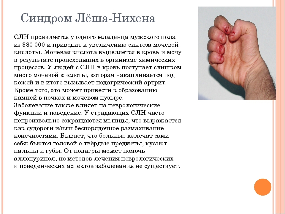 Синдром Лёша-Нихена СЛН проявляется уодного младенца мужского пола из3800...