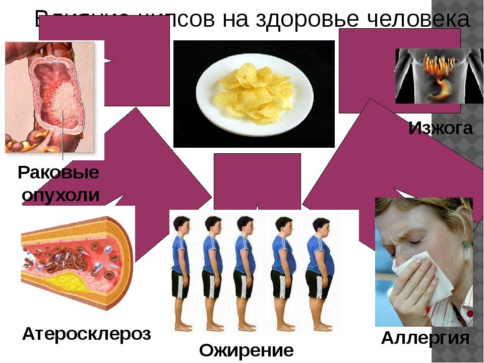 Влияние чипсов на здоровье человека Атеросклероз Ожирение Аллергия Раковые оп...