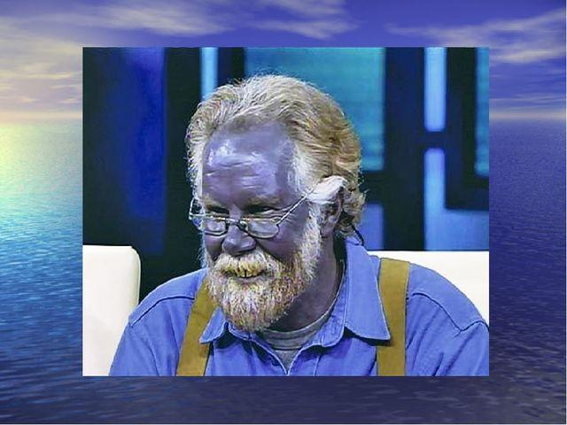 Кианетики – люди с голубым цветом крови