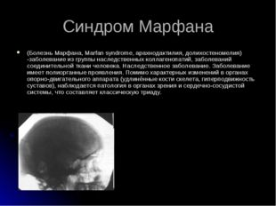 (Болезнь Марфана, Marfan syndrome, арахнодактилия, долихостеномелия) -заболев