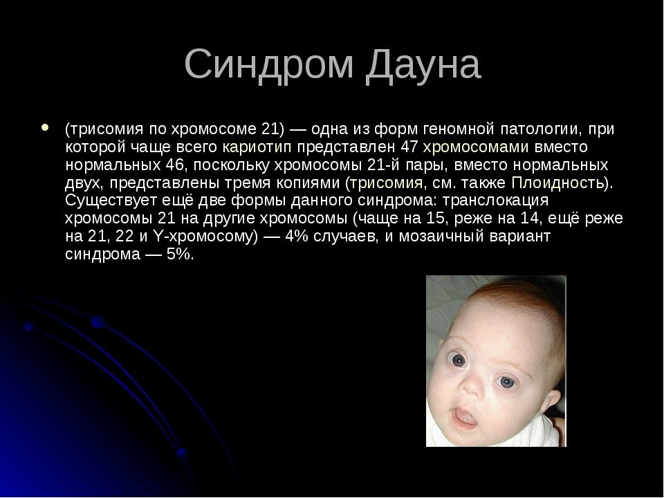 Синдром Дауна (трисомия по хромосоме 21)— одна из форм геномной патологии, п...