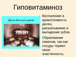 Гиповитаминоз Воспаление и кровоточивость десен, расшатывание и выпадение зуб