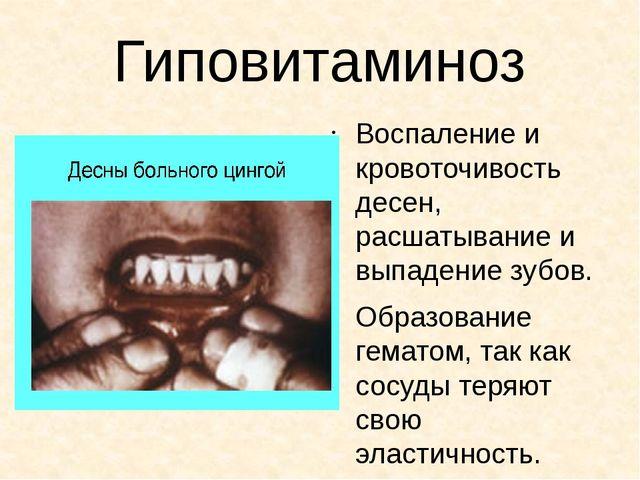 Гиповитаминоз Воспаление и кровоточивость десен, расшатывание и выпадение зуб...