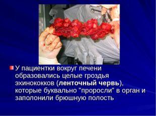 У пациентки вокруг печени образовались целые гроздья эхинококков (ленточный
